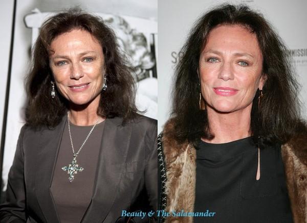 Bisset-before-after-avon.jpg