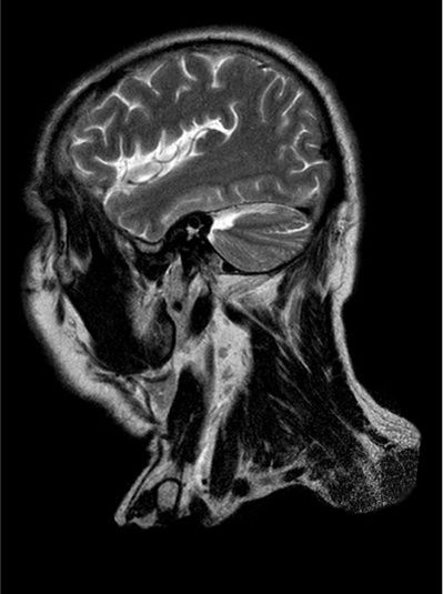 MRI-Maurice-Roucel.jpg